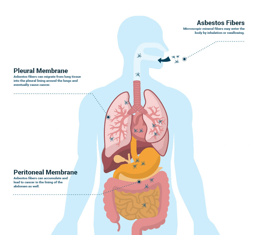 What Causes Mesothelioma Besides Asbestos